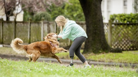 The video shows Triton smart ankle user Shelby at work, shopping and walking her dog.